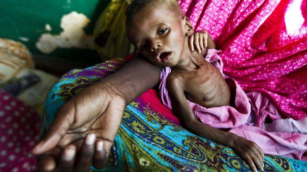 Un enfant qui meurt de faim est un enfant assassiné